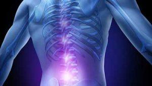 lombosciatalgia schiena