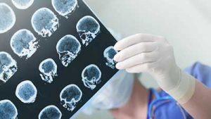 epilessia tac