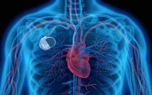 pacemaker impianto